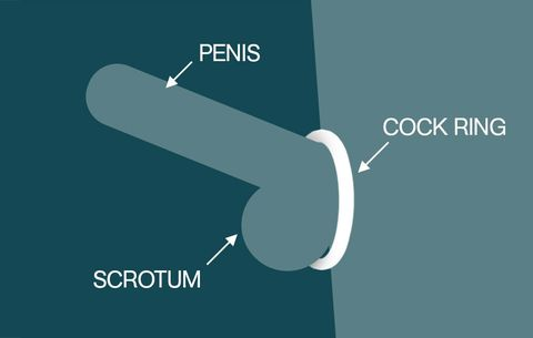 Use of cock ring ejaculation